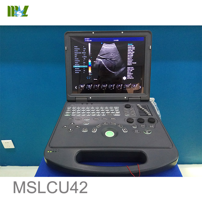color doppler ultrasound machine price