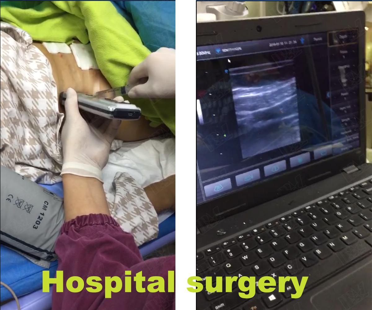 3d ultrasound