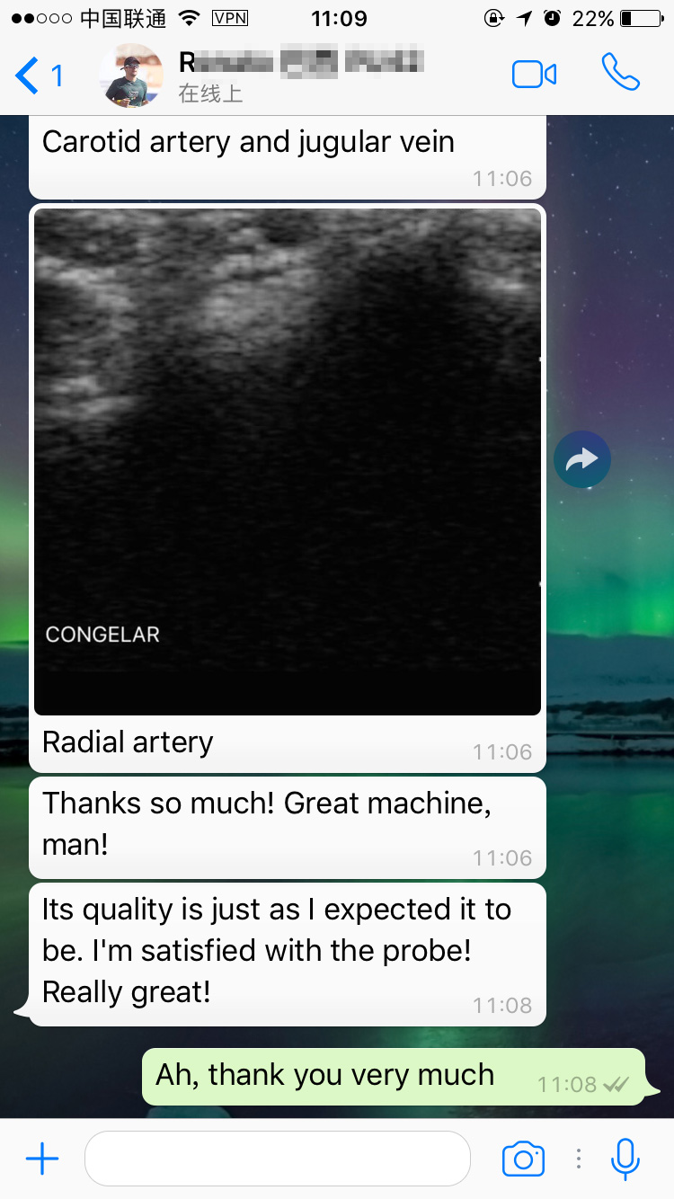 color wireless ultrasound MSLCU89 feedbacks