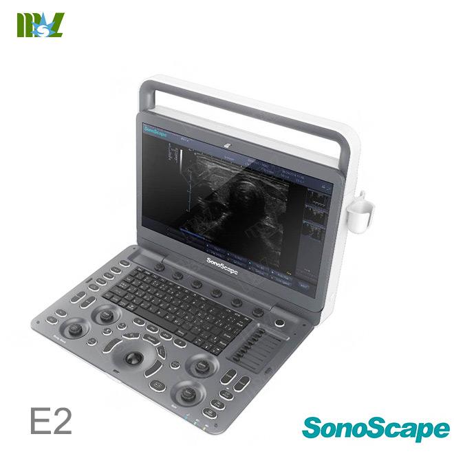 sonoscape E2