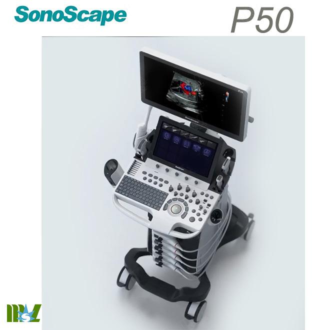 4d scan sonoscape p50