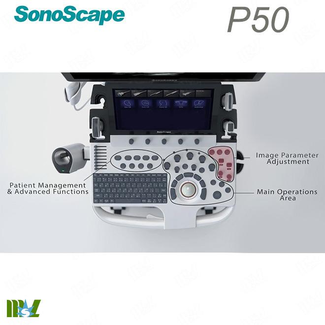 4d ultrasound sonoscape p50