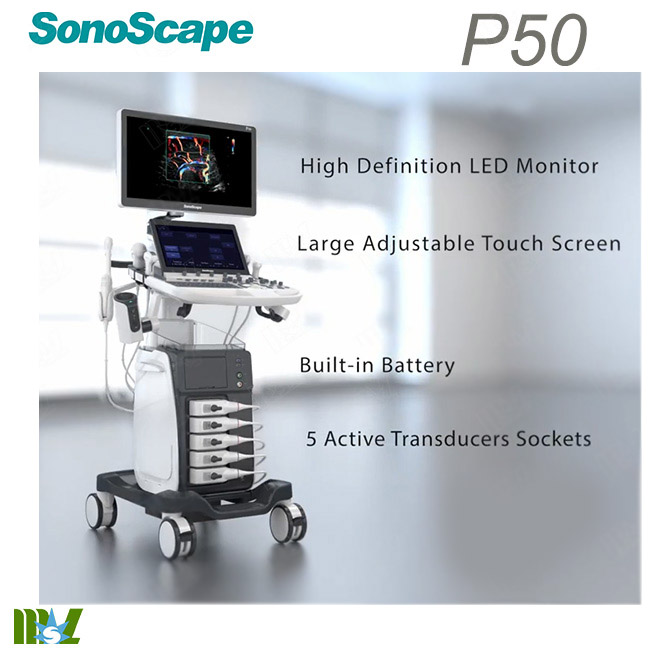 abdominal ultrasound sonoscape p50
