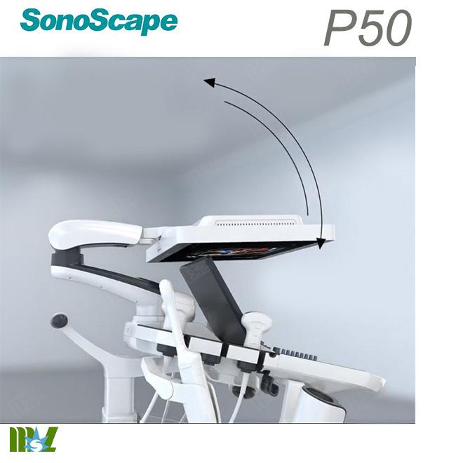 doppler ultrasound sonoscape p50