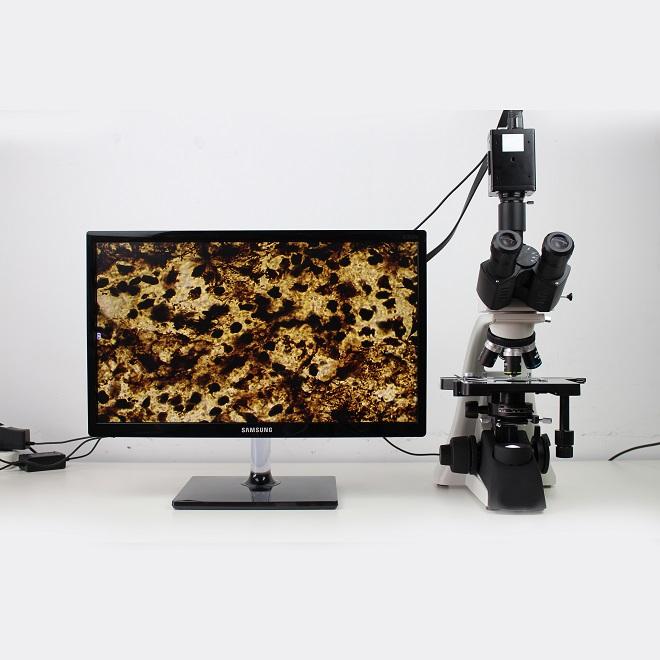 bacteria microscope