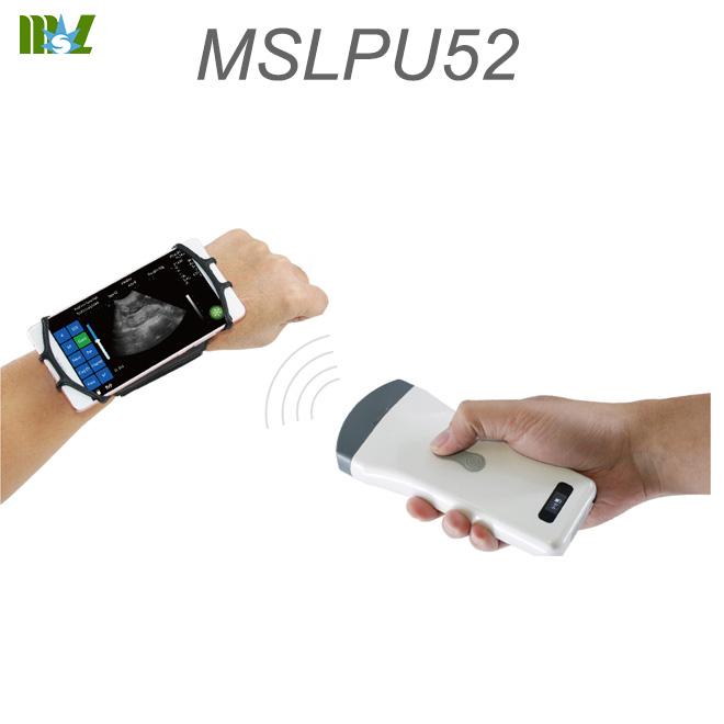 wireless ultrasound