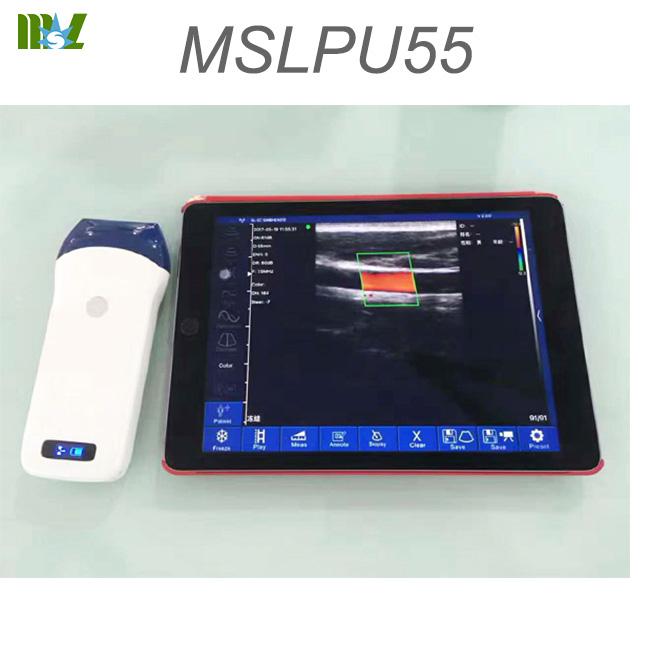 home doppler MSLPU54