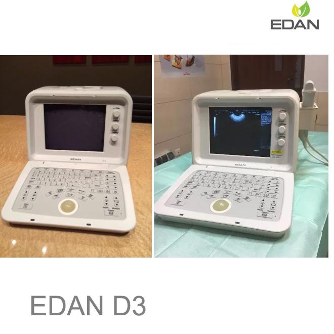 Edan D3 Digital Ultrasonic