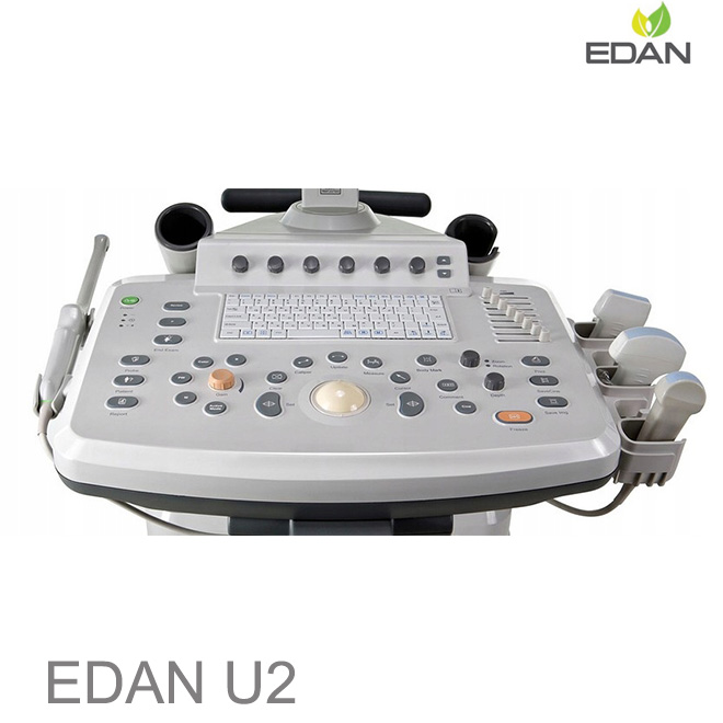 EDAN U2 doppler test for legs