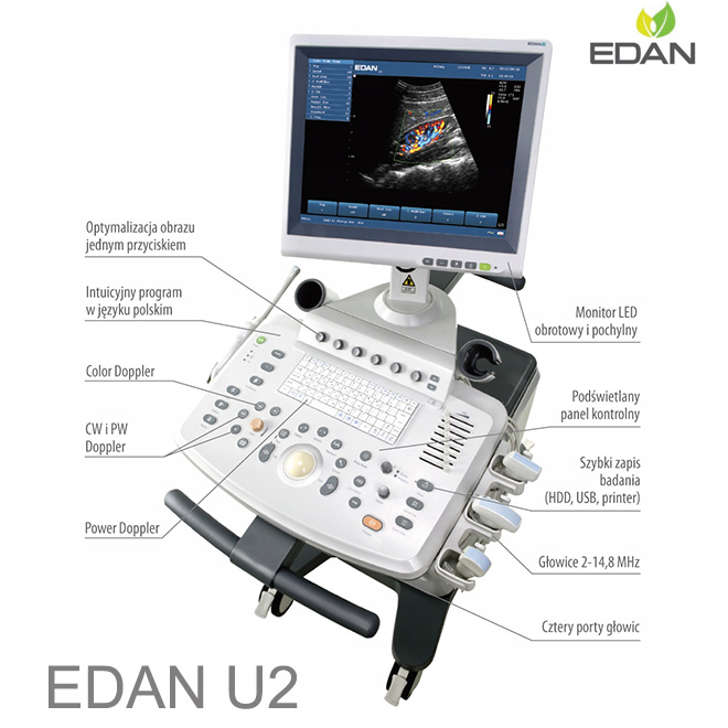 EDAN U2 color doppler ultrasound