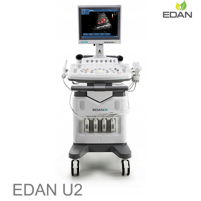 EDAN U2 doppler scan