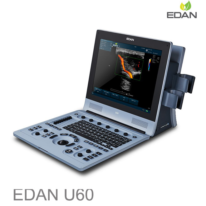 Edan U60 heart doppler