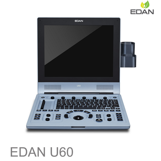 Edan U60 doppler pregnancy