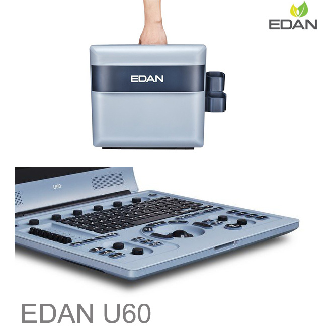 Edan U60 doppler scan