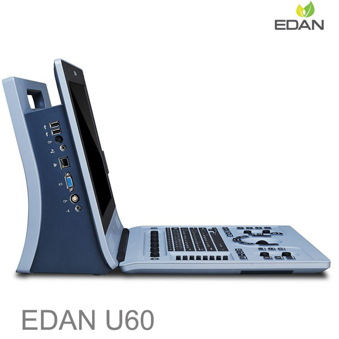 Edan U60 color doppler