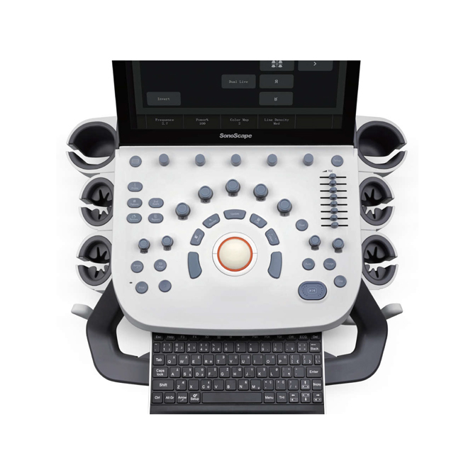 doppler ultrasound device sonoscape p9