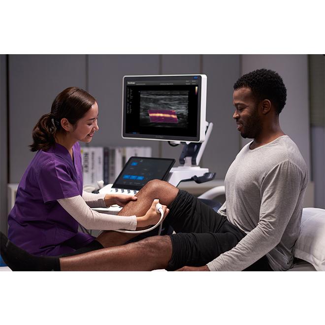 ultrasound sonoscape s60